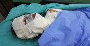 Sobayı Tinerle Yakmak İsteyen Öğrenci Yaralandı